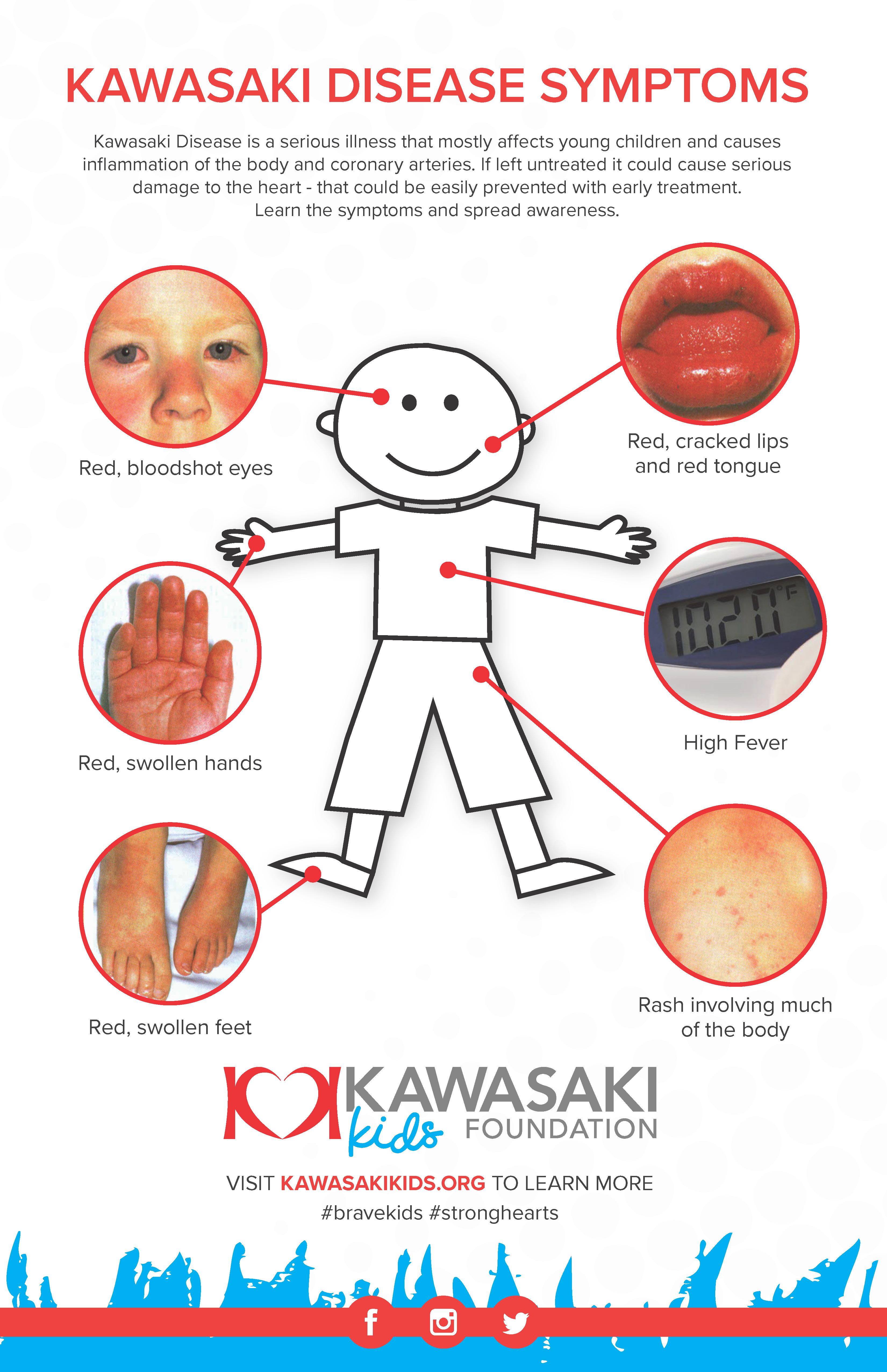 Kawasaki Disease Symptoms Poster